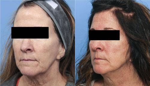 Face Lift Gallery - Patient 58213197 - Image 1