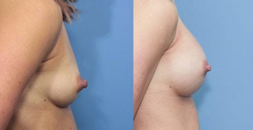 Breast Augmentation Gallery - Patient 58213196 - Image 2