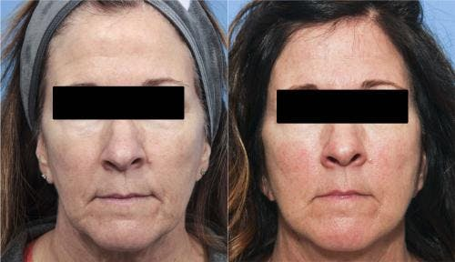 Face Lift Gallery - Patient 58213197 - Image 2