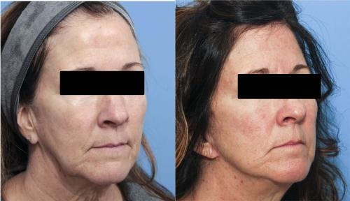 Face Lift Gallery - Patient 58213197 - Image 3
