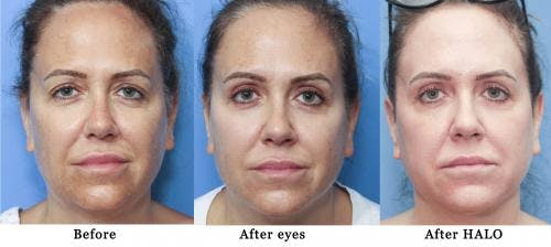 Eyelid Surgery Gallery - Patient 58213198 - Image 2
