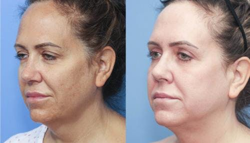 Eyelid Surgery Gallery - Patient 58213198 - Image 3
