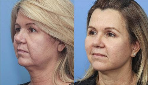 Face Lift Gallery - Patient 58213200 - Image 1