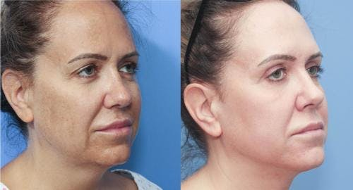 Eyelid Surgery Gallery - Patient 58213198 - Image 4