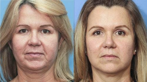 Face Lift Gallery - Patient 58213200 - Image 2