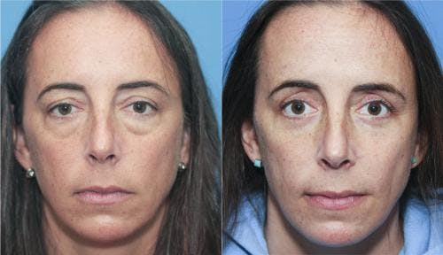 Eyelid Surgery Gallery - Patient 58213199 - Image 1