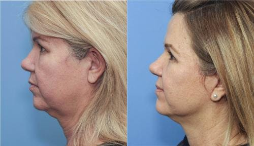 Face Lift Gallery - Patient 58213200 - Image 3