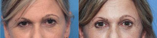 Eyelid Surgery Gallery - Patient 58213202 - Image 1