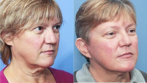 Face Lift Gallery - Patient 58213204 - Image 1