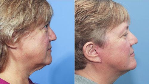 Face Lift Gallery - Patient 58213204 - Image 2