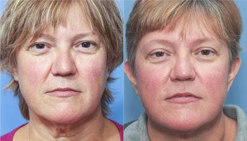 Face Lift Gallery - Patient 58213204 - Image 3