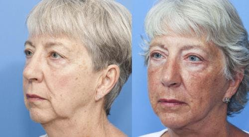Face Lift Gallery - Patient 58213207 - Image 1