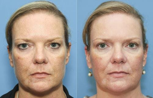 Eyelid Surgery Gallery - Patient 58213206 - Image 1