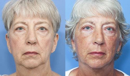 Face Lift Gallery - Patient 58213207 - Image 2