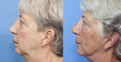 Face Lift Gallery - Patient 58213207 - Image 3