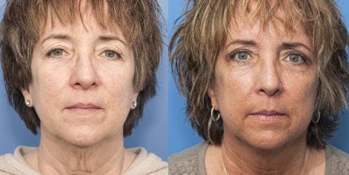 Face Lift Gallery - Patient 58213211 - Image 1