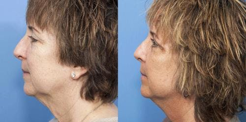 Face Lift Gallery - Patient 58213211 - Image 2