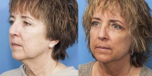 Face Lift Gallery - Patient 58213211 - Image 3