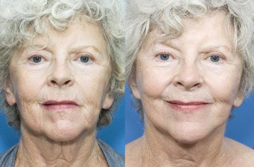 Face Lift Gallery - Patient 58213214 - Image 1