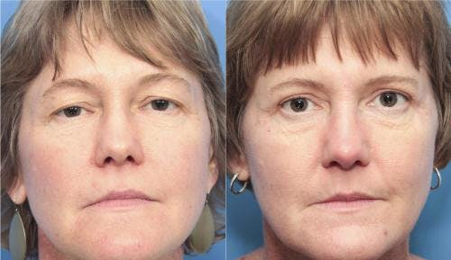 Eyelid Surgery Gallery - Patient 58213213 - Image 1