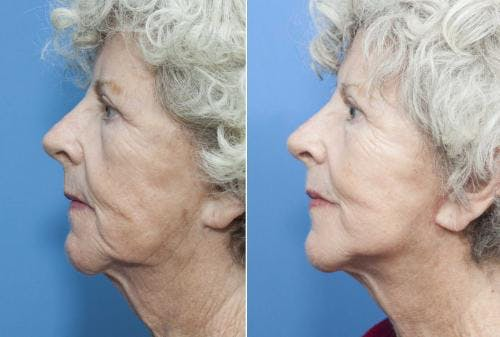 Face Lift Gallery - Patient 58213214 - Image 2
