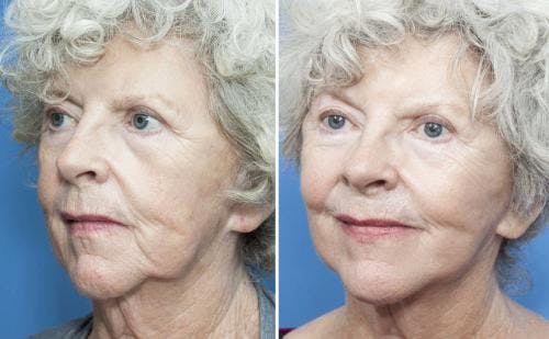 Face Lift Gallery - Patient 58213214 - Image 3