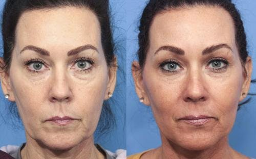 Face Lift Gallery - Patient 58213219 - Image 1