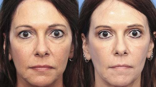 Eyelid Surgery Gallery - Patient 58213216 - Image 1