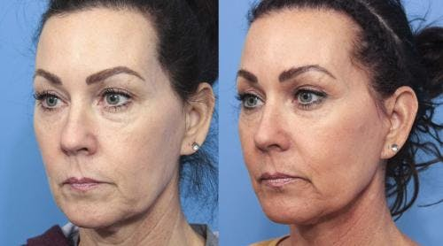 Face Lift Gallery - Patient 58213219 - Image 2