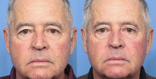Eyelid Surgery Gallery - Patient 58213217 - Image 1