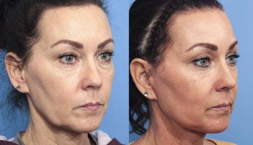 Face Lift Gallery - Patient 58213219 - Image 3