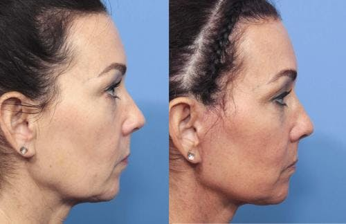 Face Lift Gallery - Patient 58213219 - Image 4