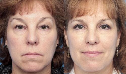 Eyelid Surgery Gallery - Patient 58213218 - Image 1