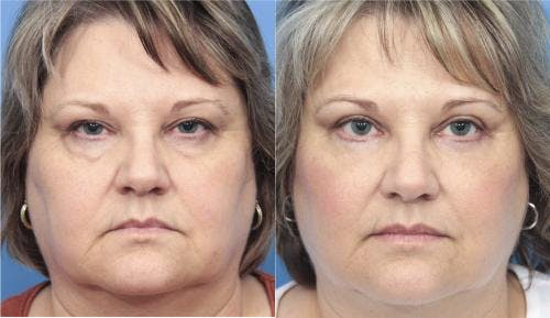 Eyelid Surgery Gallery - Patient 58213220 - Image 1