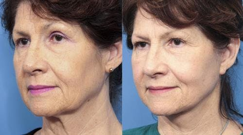 Face Lift Gallery - Patient 58213223 - Image 1