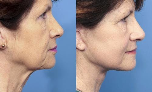 Face Lift Gallery - Patient 58213223 - Image 2