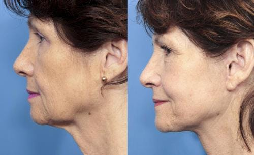 Face Lift Gallery - Patient 58213223 - Image 3