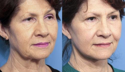 Face Lift Gallery - Patient 58213223 - Image 4