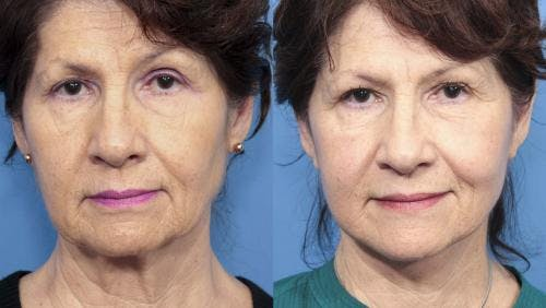 Face Lift Gallery - Patient 58213223 - Image 5