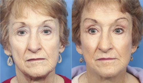 Face Lift Gallery - Patient 58213224 - Image 1