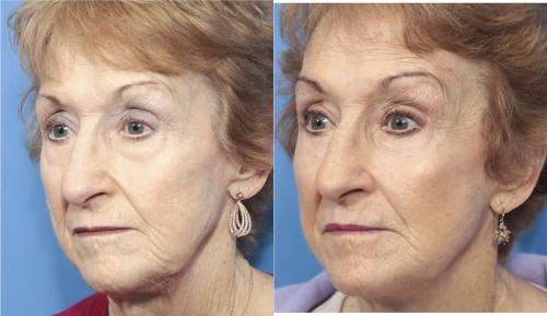 Face Lift Gallery - Patient 58213224 - Image 2