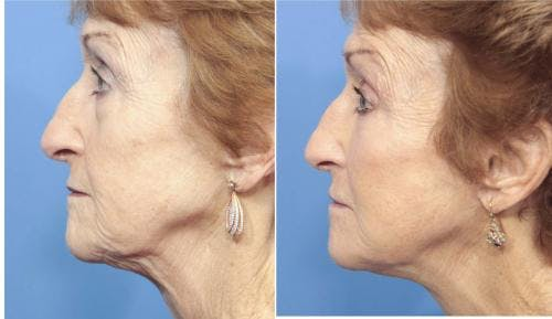 Face Lift Gallery - Patient 58213224 - Image 3