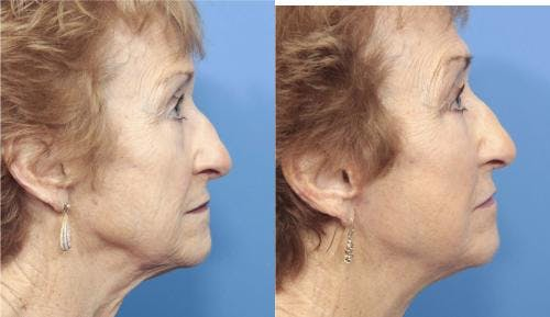 Face Lift Gallery - Patient 58213224 - Image 4