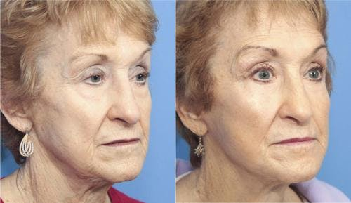 Face Lift Gallery - Patient 58213224 - Image 5
