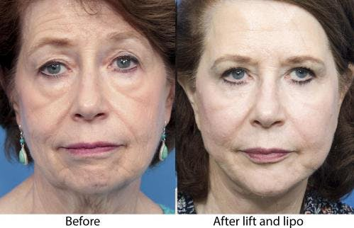 Face Lift Gallery - Patient 58213233 - Image 1