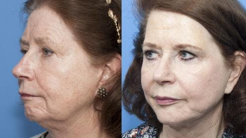 Face Lift Gallery - Patient 58213233 - Image 2