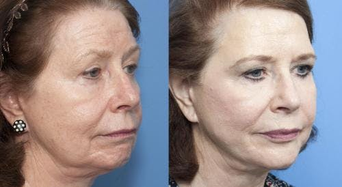 Face Lift Gallery - Patient 58213233 - Image 3