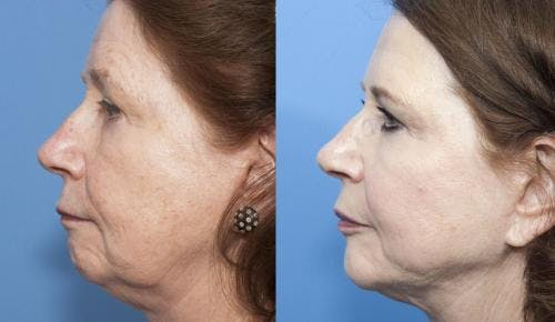 Face Lift Gallery - Patient 58213233 - Image 4