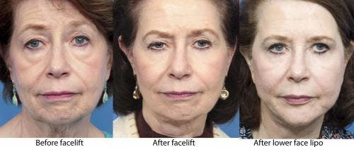 Face Lift Gallery - Patient 58213233 - Image 5