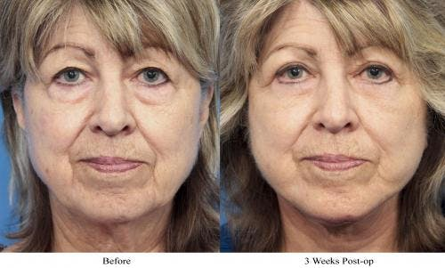 Face Lift Gallery - Patient 58213234 - Image 1